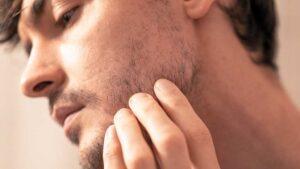 Bartwuchs mit Lücken